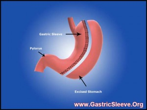 Lap Band vs Gastric Sleeve