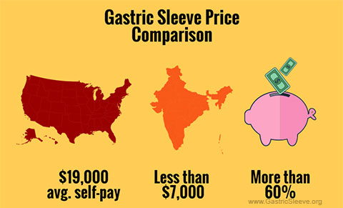 Price comparison gastric sleeve India vs. USA