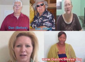 weight-loss-surgery-mexico-review