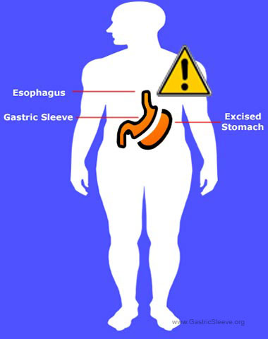 Gastric Sleeve Risks and Side Effects